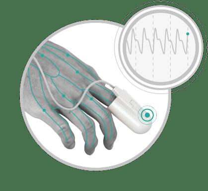 Bezdech - badanie WatchPAT