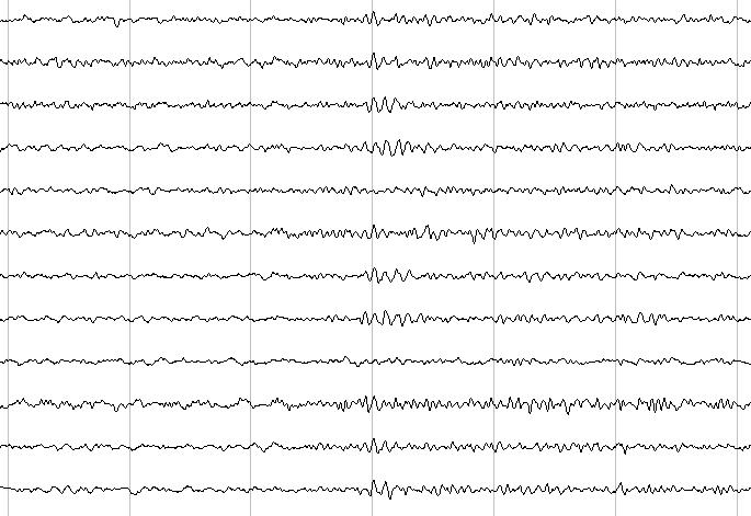 Badanie EEG - zapis aktywności